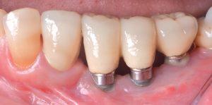 Peri-implant Disease