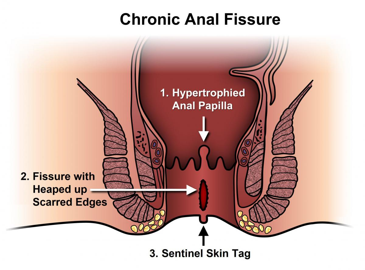 Types of fissures