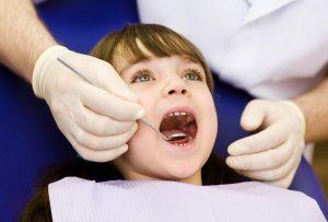 Fissure Sealing In Children