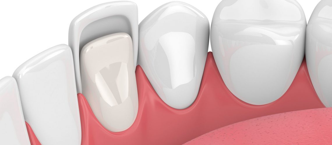 3d render of teeth with veneer over white